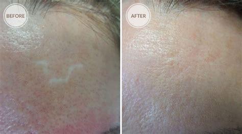 permanent makeup for scars on face makeup wordplaysalon