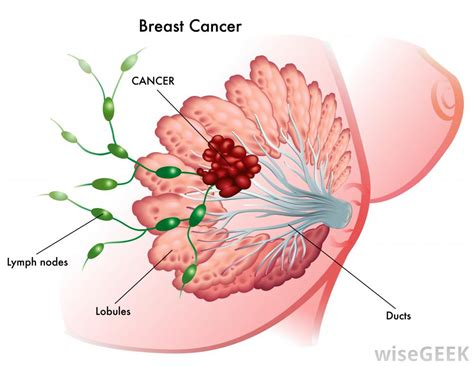 bead like lump in breast breast cancer
