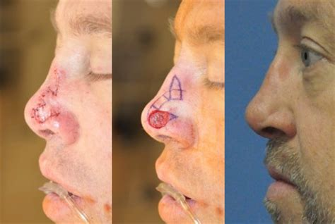 bilobed flap cpt code cpt code bilobed flap nose mohs reconstruction basal