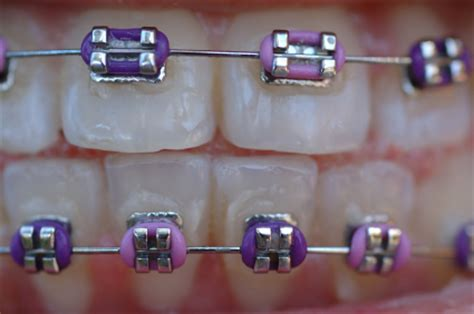 Rubber Bands For Braces Colors by Bond Or Band To Fix Braces To Back Teeth National