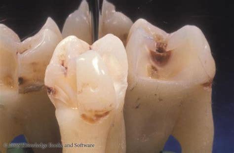 fissure sealants christopher sale dentistry