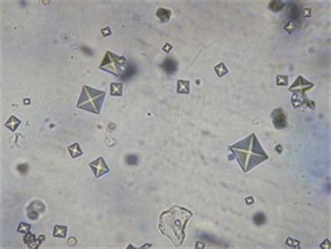 analisi completa delle urine con esame sedimento esame completo delle urine
