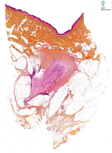 pilonidal cyst pilonidal sinus humpath com human pathology