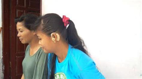 Alat Bantu Dengar Di Optik Internasional gadis palembang ini senang jr saragih bantu alat bantu pendengaran