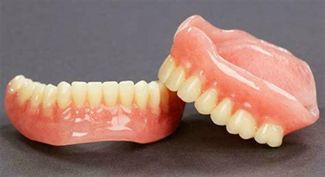 prezzo protesi dentaria mobile protesi mobile scheletrati e dentiere dentista in rete