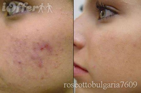 a substance that causes sensitivity to light azelaic acid for acne treatment