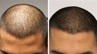 pics of scalp micropigmentation on with hair adding density hairline ink