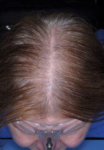 gpnotebook female pattern hair loss stem cells fat transfer for hair loss miami fl