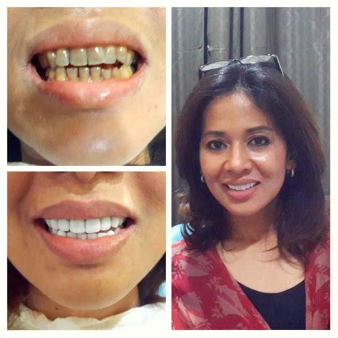 Biaya Pembersihan Karang Gigi Di Nadira testimonial audy dental klinik gigi spesialis dengan