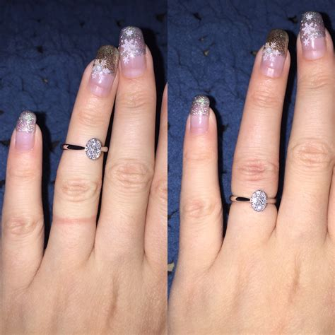 ring finger swelling size problems
