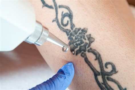 remove skin tattoo laser removal guide to numb your skin before it
