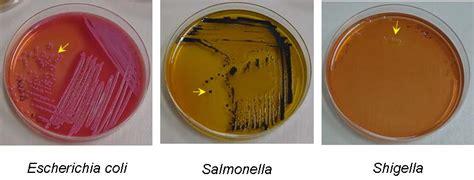 Salmonella Stool Color by Salmonella Shigella Plates