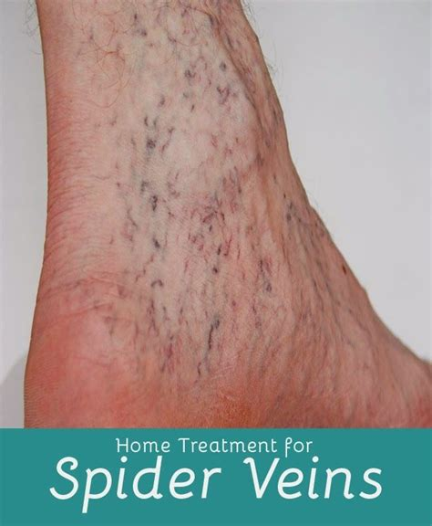 72 best images about varicose veins on