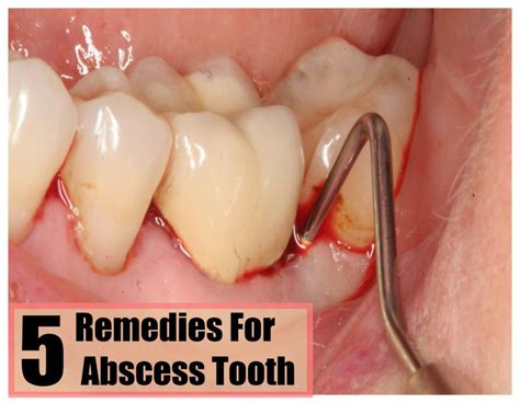 72 best abscess tooth images on healthy teeth