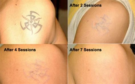 tattoo removal after tattoo temoval before and after pictures tattoo removal