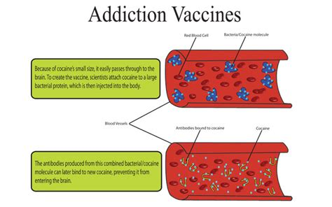 How To Detox From A Vaccine by Coca Effects