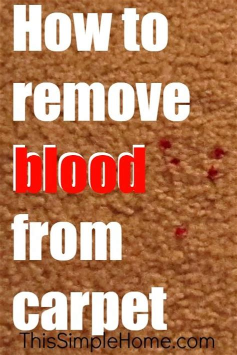 how to remove blood from upholstery 17 best ideas about remove blood stains on pinterest