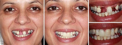 4 missing front teeth implants replace missing front teeth parrock dental implant centres