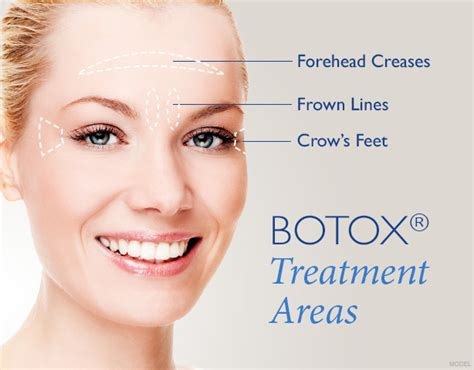 7 Wrinkle Areas And How To Treat Them by Botox Greenville Sc The Saltz Spa Free