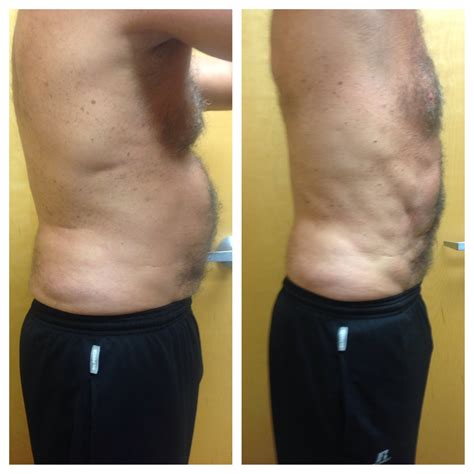 Liposuction Or Weight Loss by Cavi Lipo Weight Loss Slimming Experts
