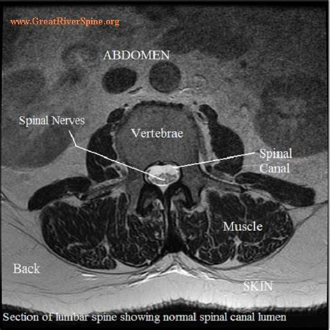 normal symptoms after c section lumbar spinal stenosis