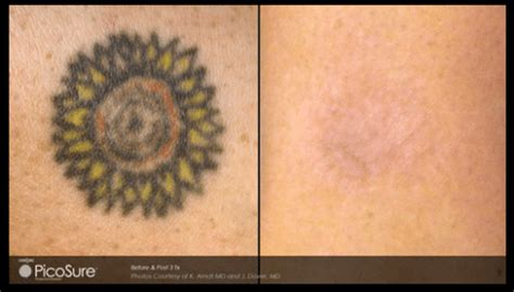tattoo removal newtown removal before after results sydney skin clinic
