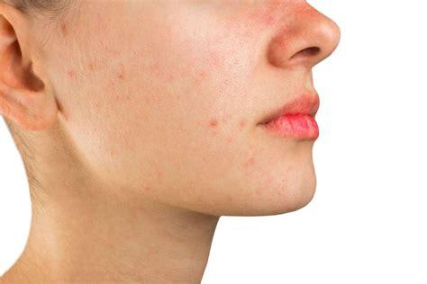 brufoli e alimentazione acne rosacea cause cure rimedi naturali e alimentazione