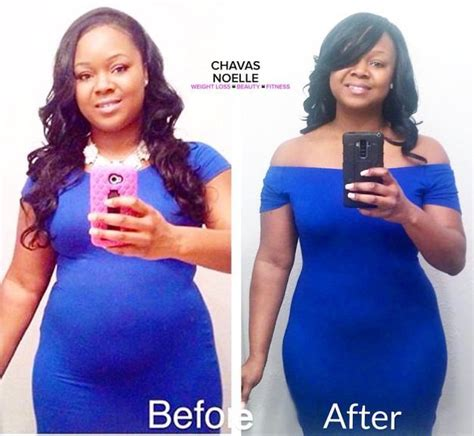 fasting before c section 1200 lb woman loses weight without dieting placesgalawo