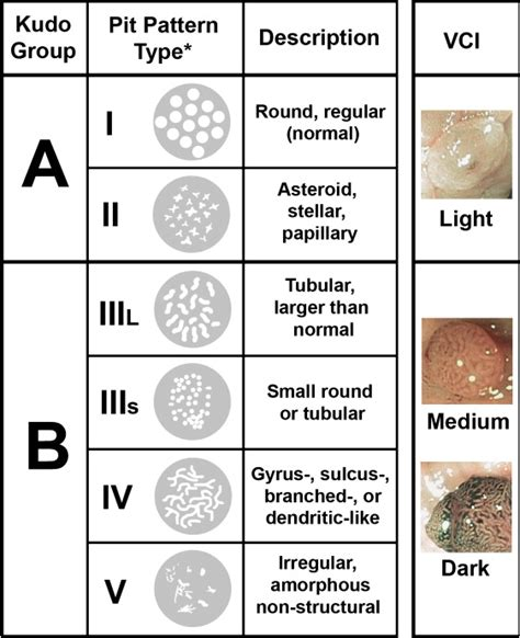 pit pattern classification in colonoscopy narrow band imaging without high magnification to