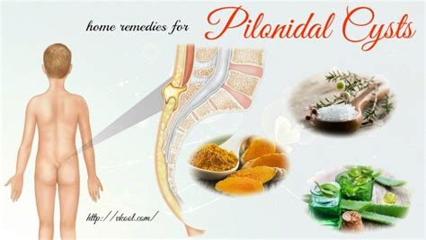 top 15 home remedies for pilonidal cysts