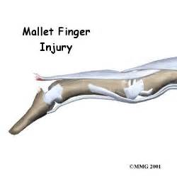mallet finger injuries orthogate