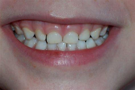 imagenes dientes temporales causas de las manchas blancas en los dientes