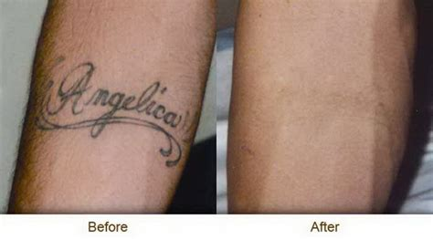 derby tattoo removal delicate back tattoos for creative fan 171 top tattoos