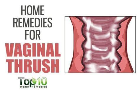 home remedies for thrush top 10 home remedies