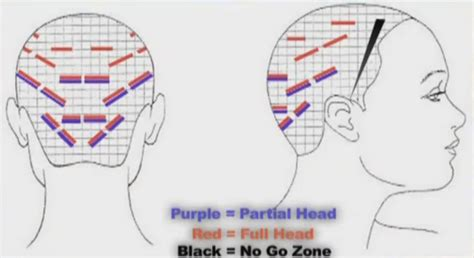 quest placement pattern hair extension placement diagram hair extension diagram