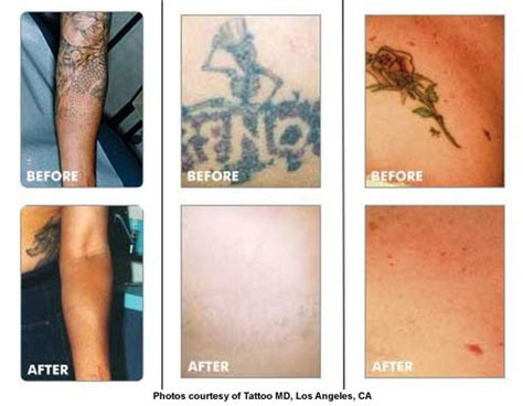 mederma tattoo removal 100 how to delete a new ways on how to