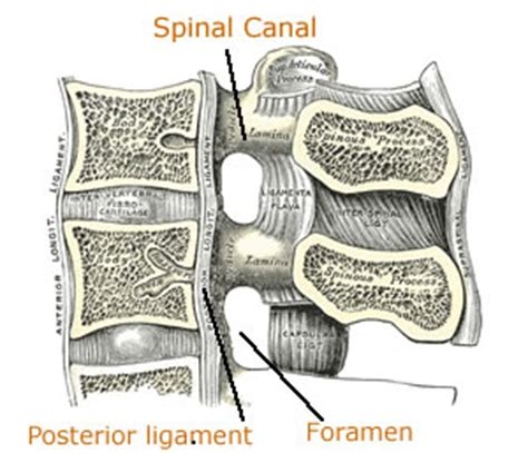 spinal stenosis diagram lumbar spinal stenosis symptoms and treatment