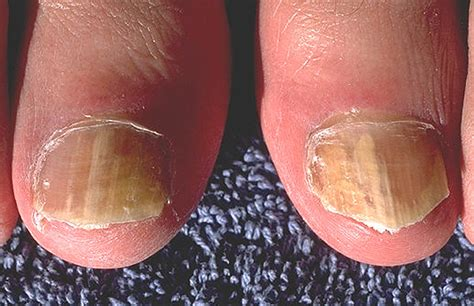 nail infection fungal nail infection causes symptoms treatment pictures diseases pictures
