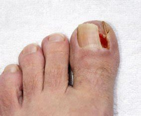 infected toenail bed ingrown toenails perth amboy nj 08861 foot doctor