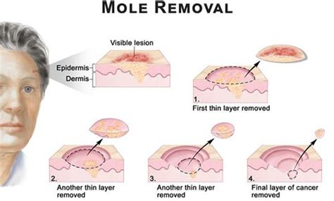 mole removal specialist 183 2016 top laser dermatologist nyc