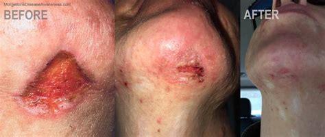 Morgellons Disease Awareness Morgellons Disease Tips