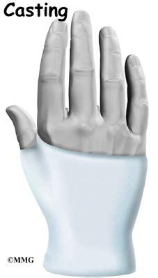 Scaphoid Wrist Fracture   Houston Methodist Fractured Wrist Treatment