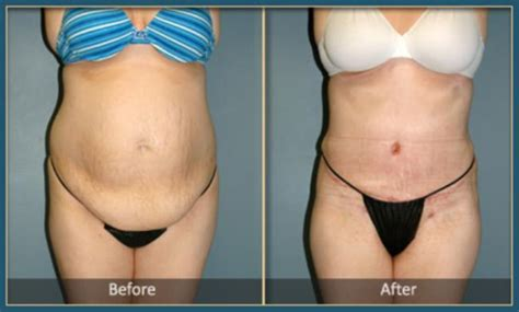 Plastic Surgery After C Section by Tummy Tuck Chevy Md Tummy Tuck Washington D C