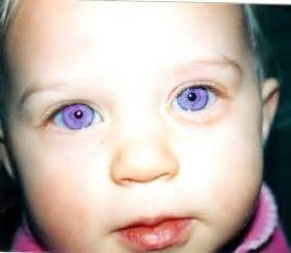 eye color mutations violet a genetic mutation called alexandria s