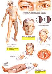 circulation motor sensory neuro block 3 l10 brain circulation pictures flashcards
