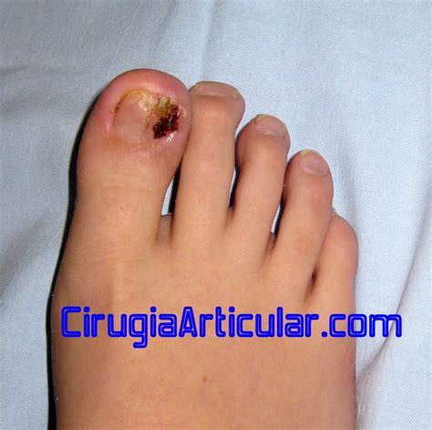 como decorarte las uñas delos pies una encarnada