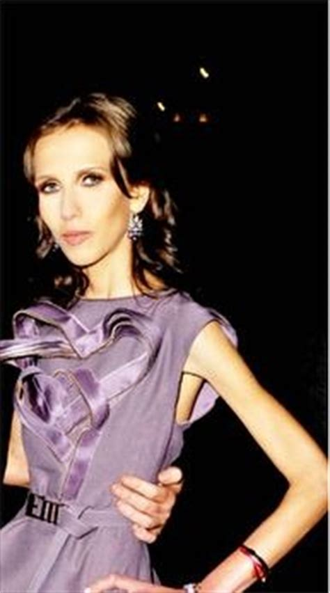 Allegra Versace Has Anorexia by Top Scary Slim Downs Photos Weight