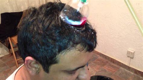 Alat Bekam Kepala Tanpa Cukur mesin bekam kepala tanpa cukur