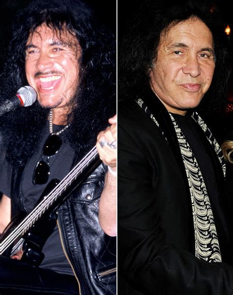 Graphic Footage Of Gene Simmons Plastic Surgery by Who The Knife
