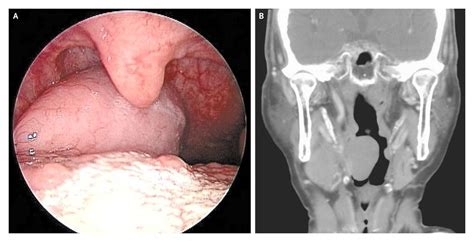 icd 10 code throat fullness pharyngeal mass in a patient with b cell lymphoma nejm